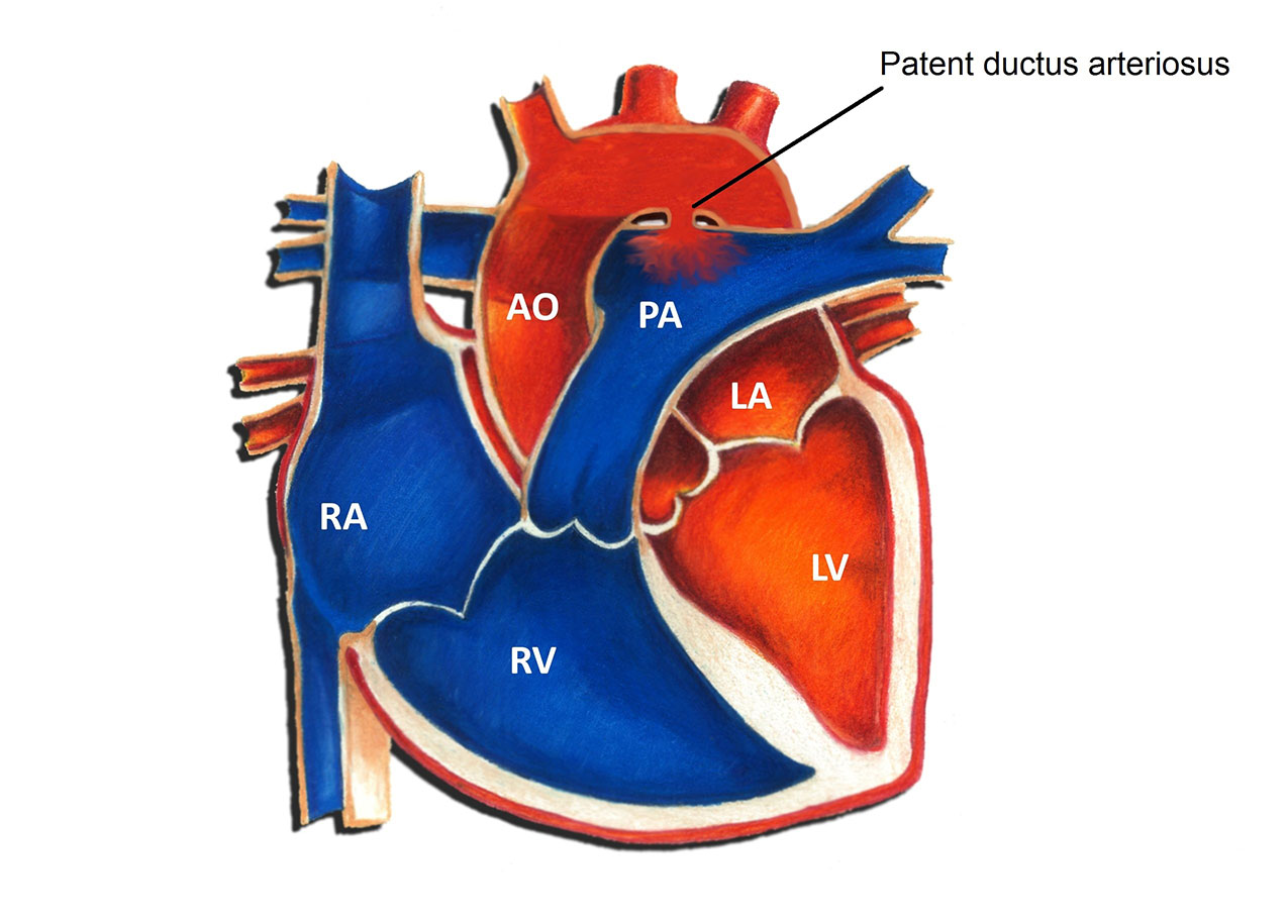 Patent Ductus Arteriosus
